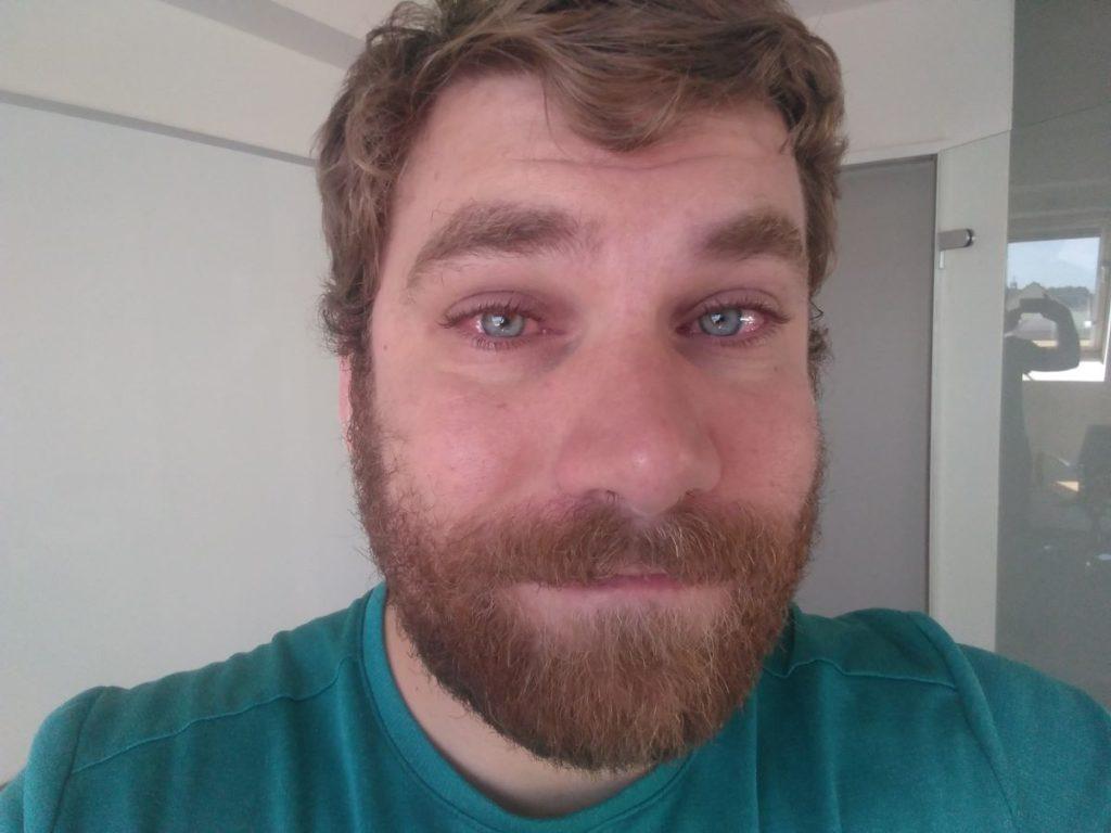 Schlimmer Heuschnupfen an den Augen erkennbar